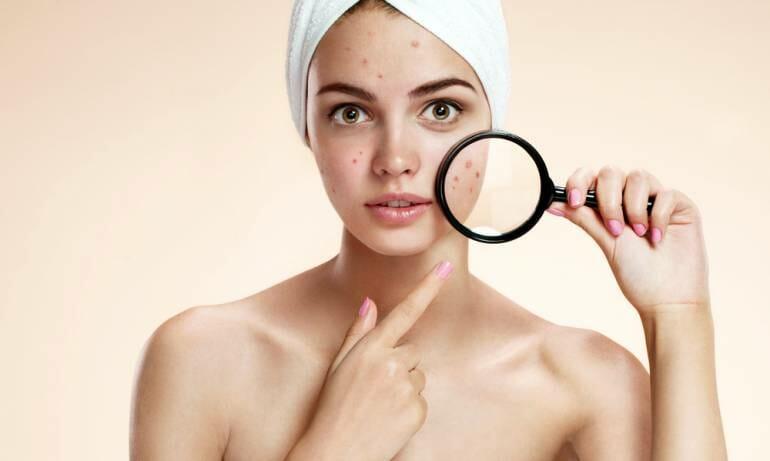 CBD Hemp Oil is a Non-Intrusive and Safe Acne Treatment