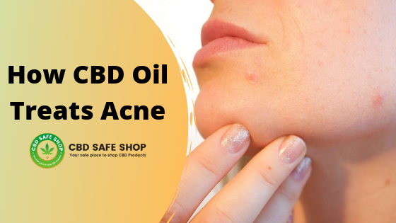 How CBD Oil Treats Acne